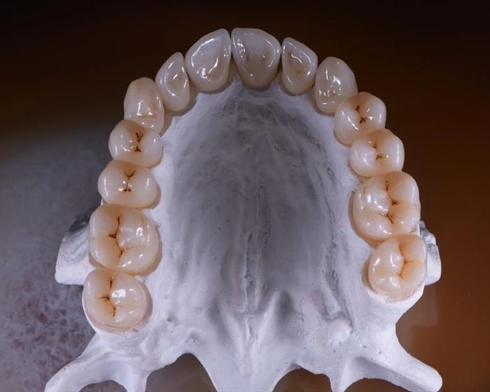 3D ProMax Zirconia Block